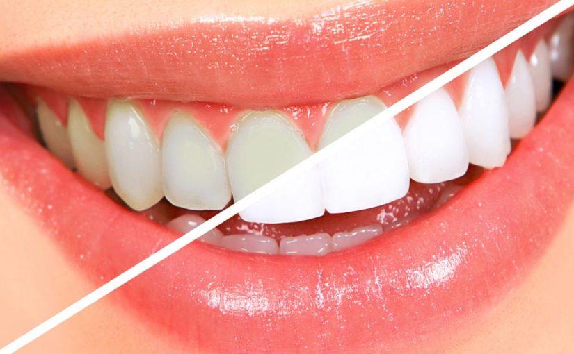 Principalele motive ale îngălbenirii dinților